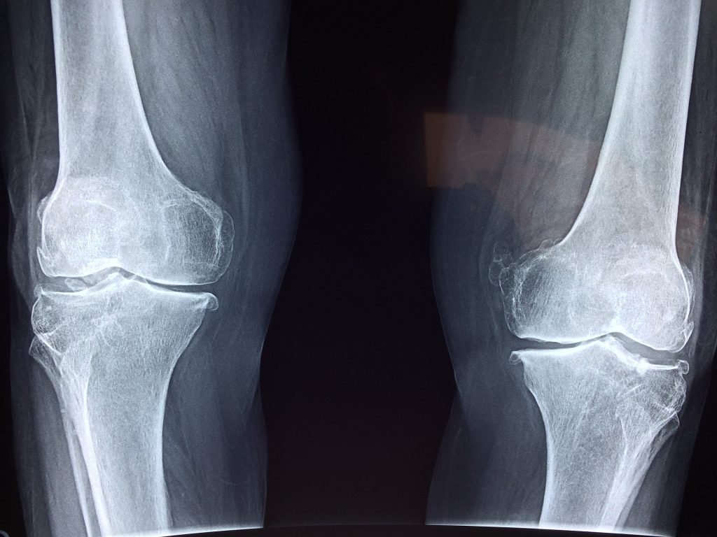 X-ray image of knees