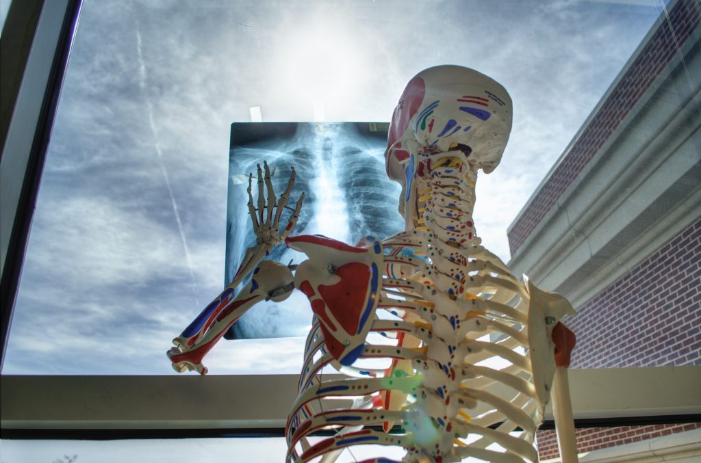 X-rays are photographs or digital images of a part of the human body (and other materials) produced by X-rays passing through and absorbed by it.