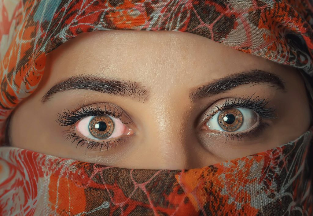 Image of a woman's eyes; one of them slightly pink