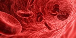 Anemia - Image of Red Blood Cells