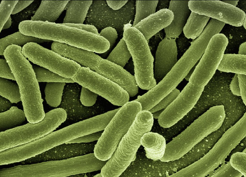 Image of microscopic view of e. coli bacteria