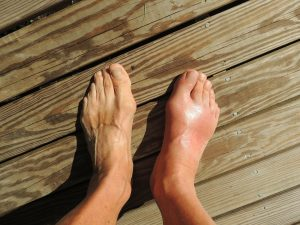 A pair of feet on wooden planks; one swollen