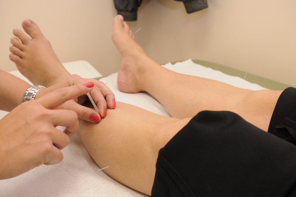Photo of acupuncturist applying needles in a person's legs
